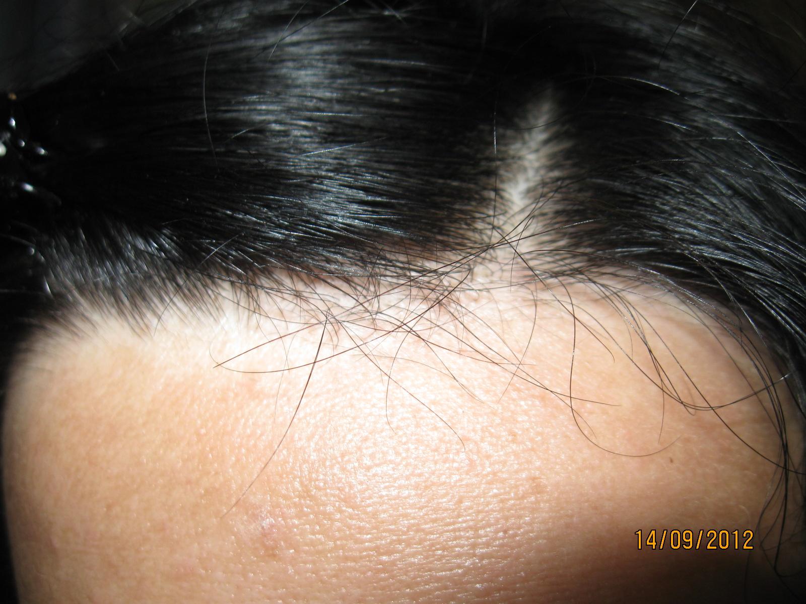 Восстановить волосы после приема антибиотиков форум